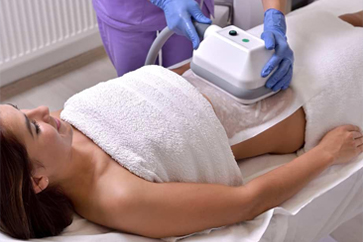 Fat Freezing (Cryotherapy)-small