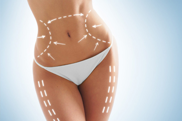 Radio Frequency Tummy Tightening-small